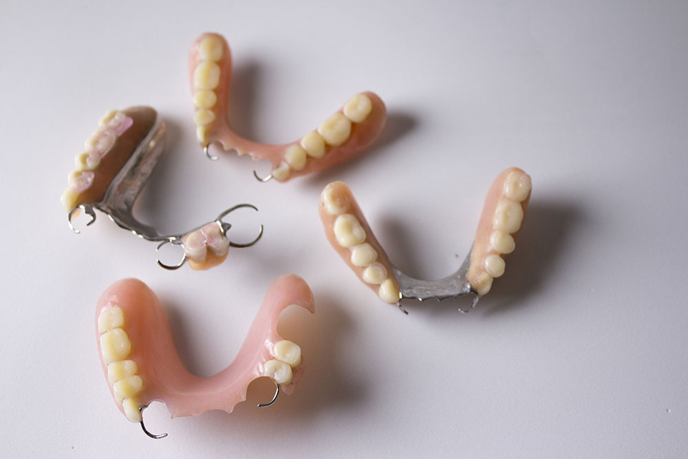 Partial denture - These suit patients who have lost just one or a few of their natural teeth and wish to fill in the gaps left behind. They are a great replacement for missing teeth that can be taken out and put back into the mouth. We can offer you partial dentures that are comfortable to wear and look natural.