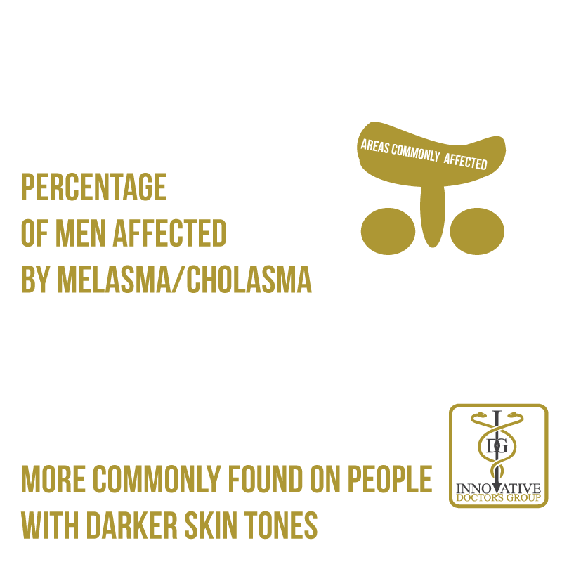 Melasma & cholasma are discolouring of the skin, primarily on the face