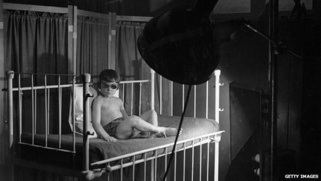 Trẻ em Đức được soi đèn cực tím những năm 1920 - Ảnh: Getty Images