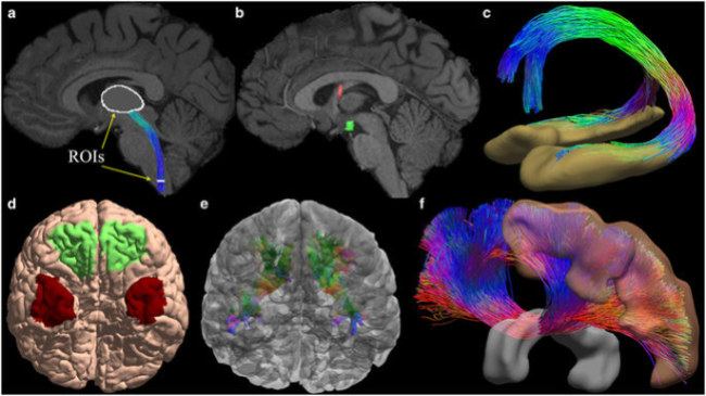 Bộ não của con người ngày càng phát triển lớn hơn là do đối mặt với áp lực trong cuộc sống hiện đại. Ảnh: Nature.