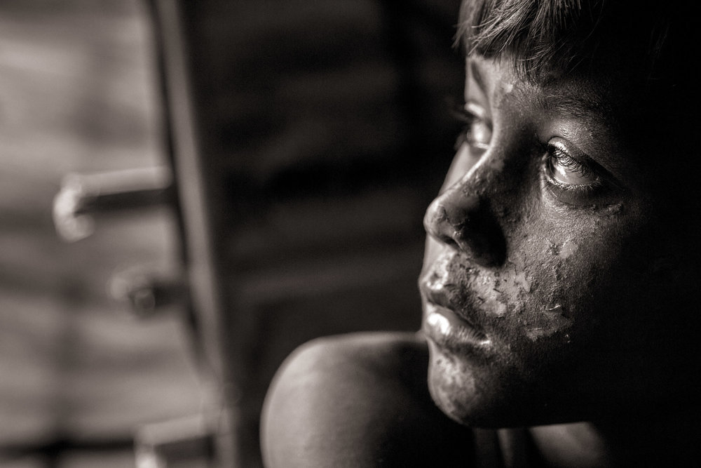 Mohammadshofait Kurimullah, 8, still suffers from burn wounds when their house was set on fire in Lambaghuna Moungdaw in Myanmar. His mother, Yasmin Kurimullah, says she has not seen his father and one of her other sons since August 25. They now live in Whaikhyang Refugee Camp, near the Myanmar border in Bangladesh, Oct. 6, 2017.