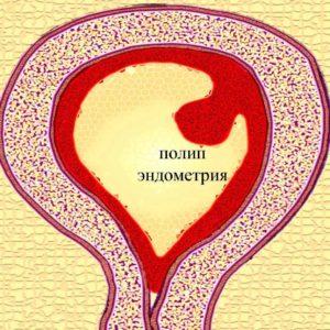 полип эндометрия - диагностика