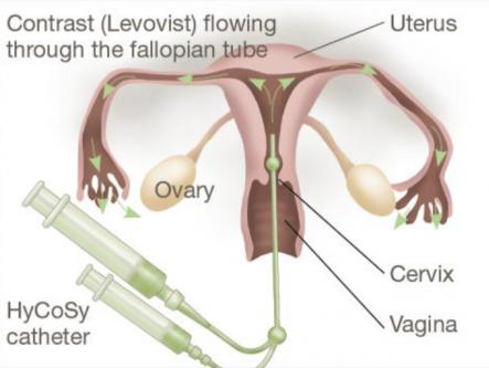 Хромосальпингоскопия