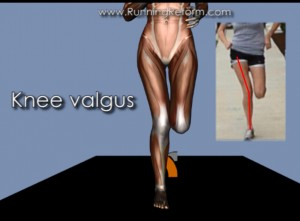 Knee valgus - this isn't A Good Thing.