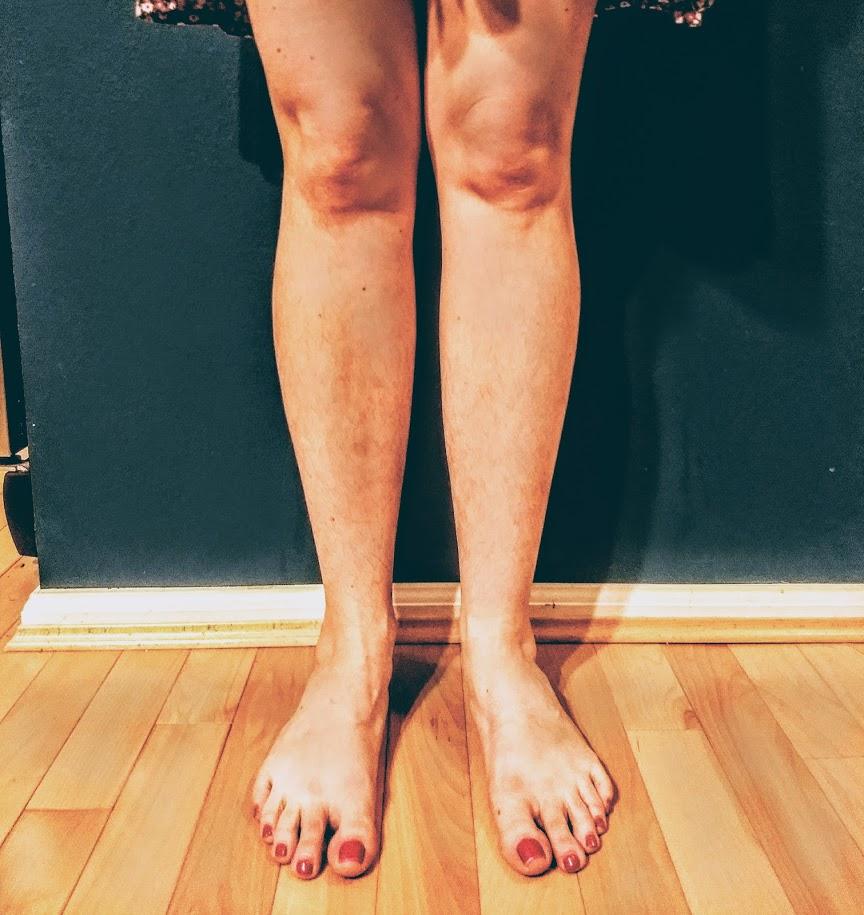 hairy legs.jpg