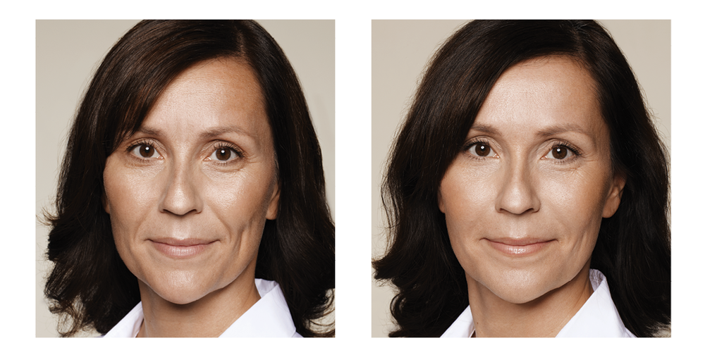 This patient has been treated with dermal fillers to the Frown lines, Tear trough (tired eyes), Nose-to-mouth lines, Jawline and Skin Hydration Boosters to the face