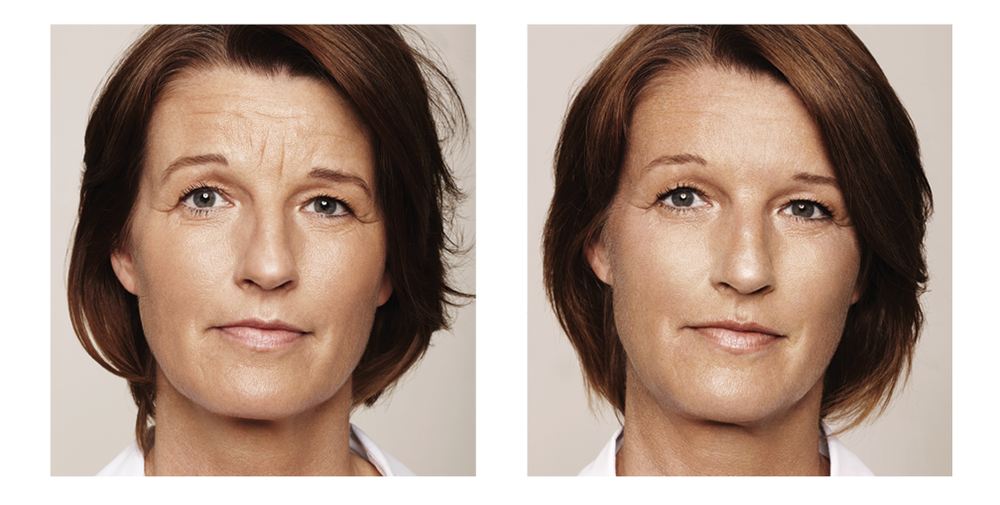 This patient has been treated with dermal fillers to the Worry lines & Forehead lines