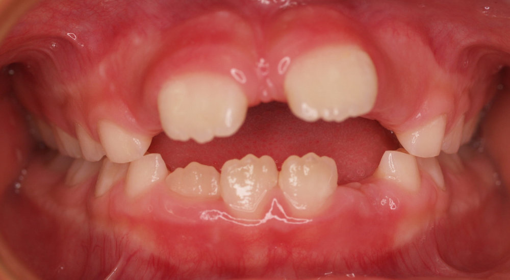 A typical anterior open bite