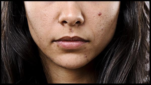 acne-prone-skin_grande.jpg