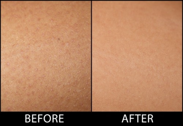 Keratosis-Pilaris-Before-After-Shot-500x344.jpg