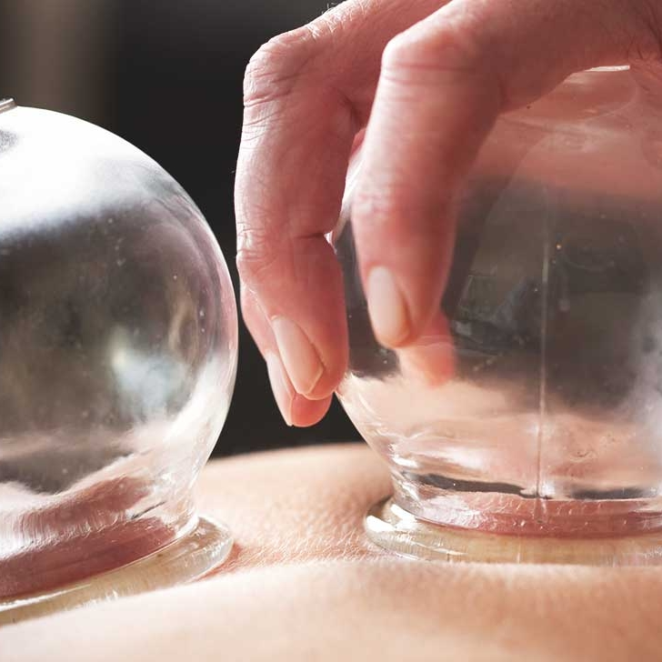 Copy of Cupping Therapy Near Me
