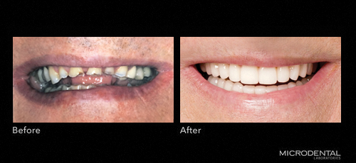 Dentistry by Dr. Robert Klaich; Cranberry Twp, PA