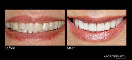 Dentistry by Dr. Alan Montrose, Beaverton, OR