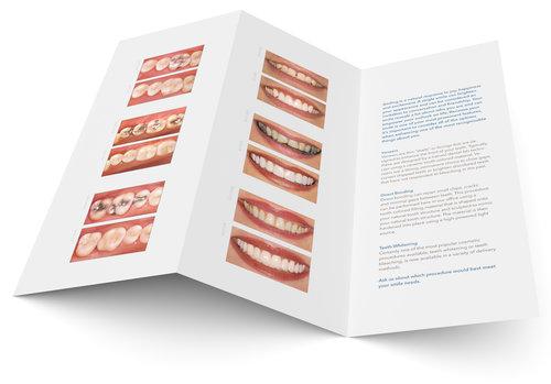 MDL-Brochure
