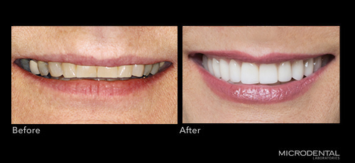 Dentistry by Dr. Brian Klaich; Cranberry Twp, PA