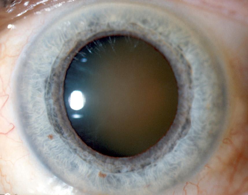 Cataracte  avancée et sévère entraînant une perte totale de la vue