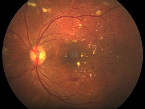 retinopathie_diabetique.png