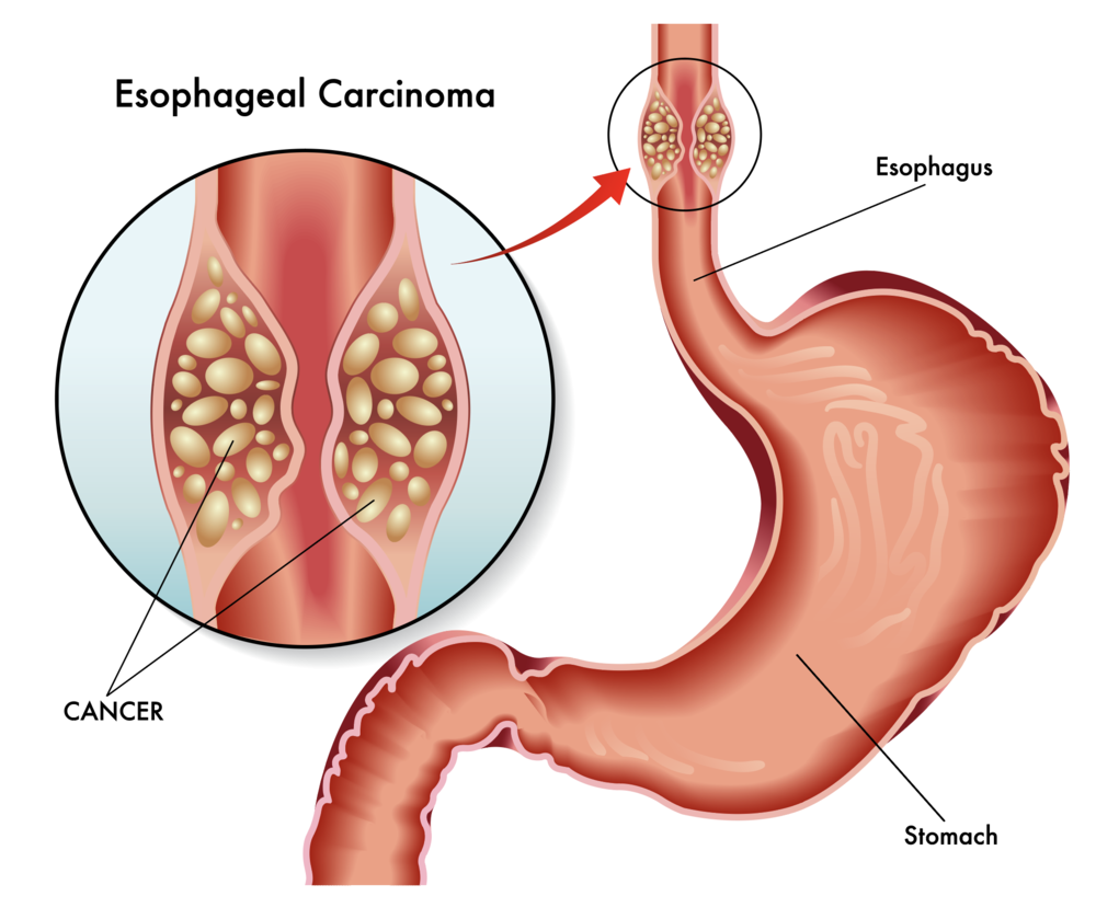 esophageal-carcinoma-cancer