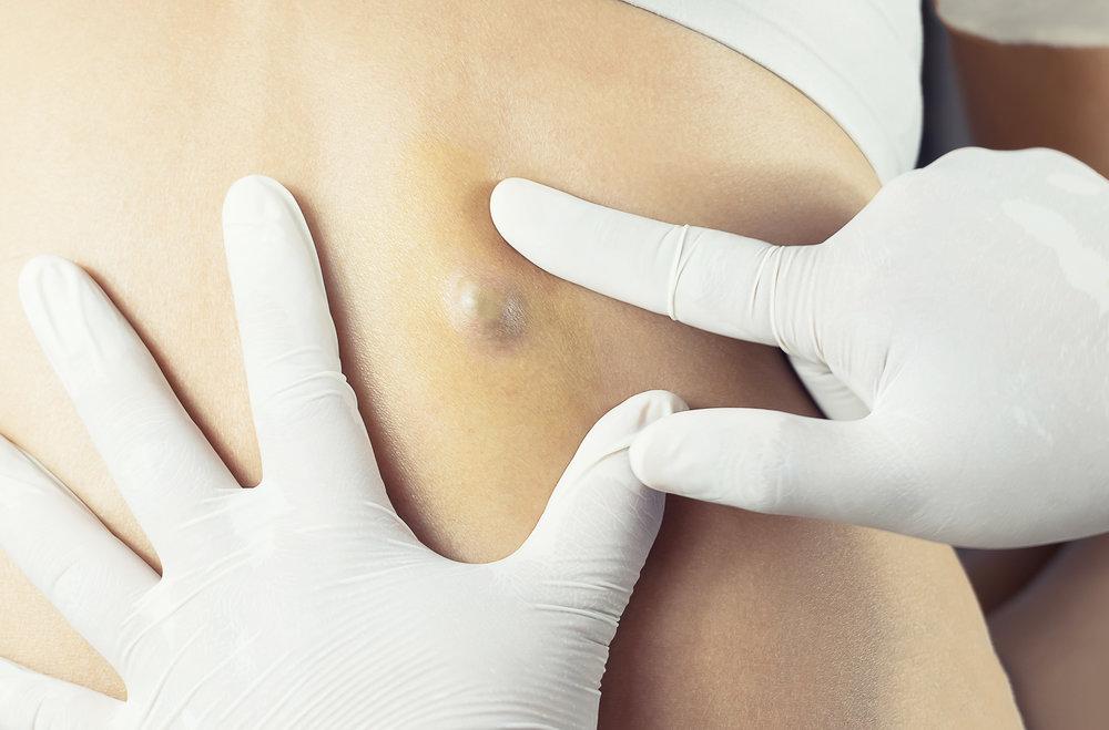 Skin Lumps & Bumps -