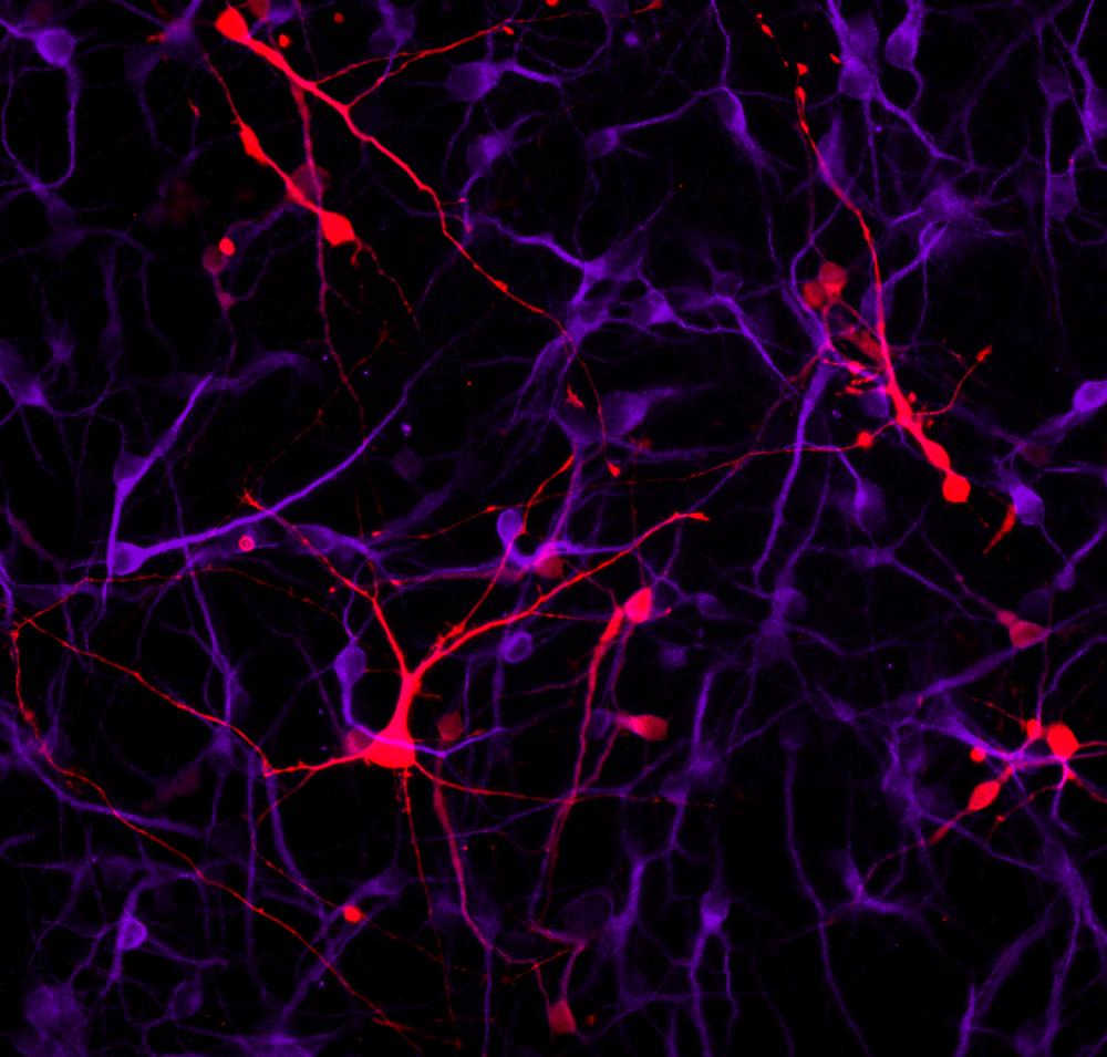 GABA neuron MAP2_Calretinin.png