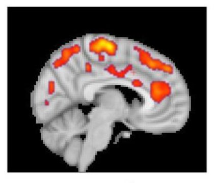 This combined MR/PET image highlights areas of the brain in which patients with fibromyalgia were found to have increased glial activation, compared with unaffected control volunteers.   Credit: Marco Loggia, PhD, Martinos Center for Biomedical Imaging, Massachusetts General Hospital   https://www.sciencedaily.com/releases/2018/09/180927122946.htm