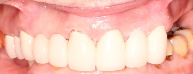 Dr Burke removed the old bridge on the upper left, removed decay, disinfected with laser and O2/O3 therapy. The new bridge was made and the diastema was closed. Patient was very pleased with the result.