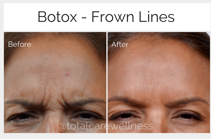 Botox frown lines.png