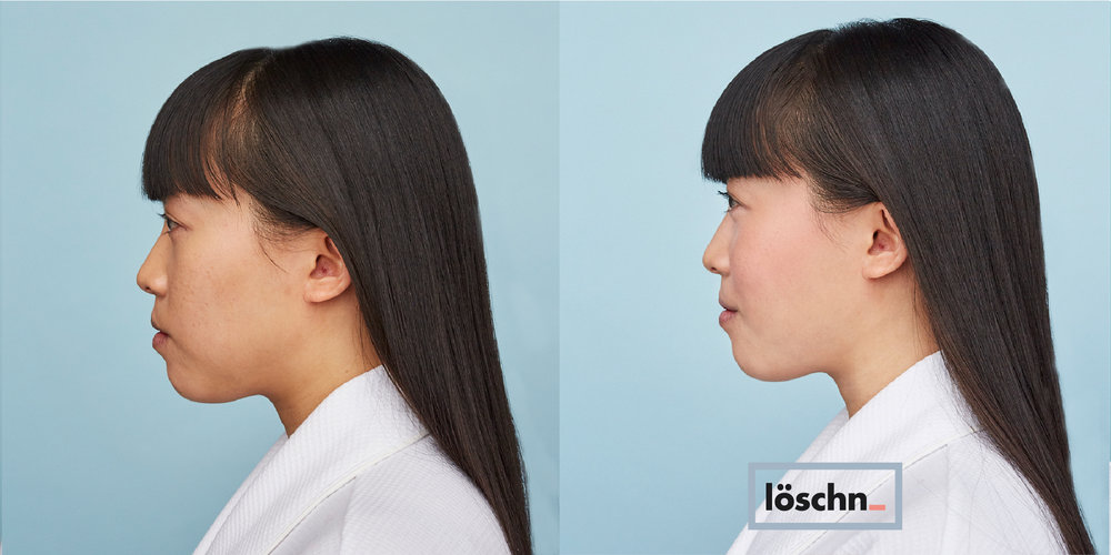 Before-Jessie-2.jpg