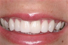 Cosmetic Smile Enhancement AFTER