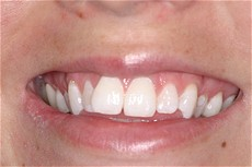 Cosmetic Smile Enhancement BEFORE