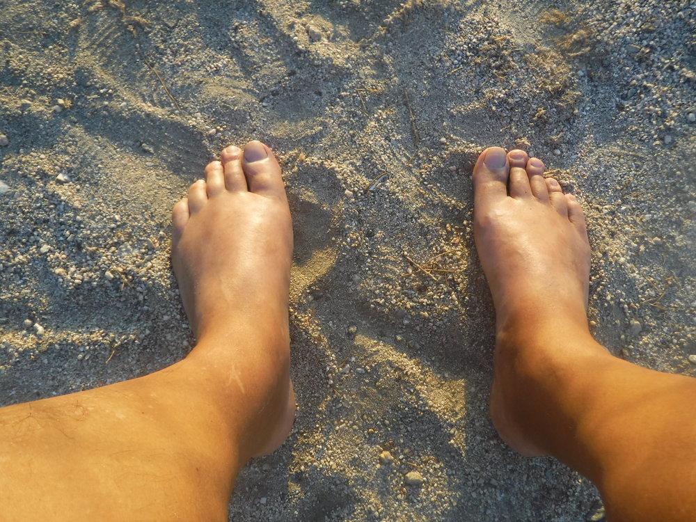 Bloat-o Feet