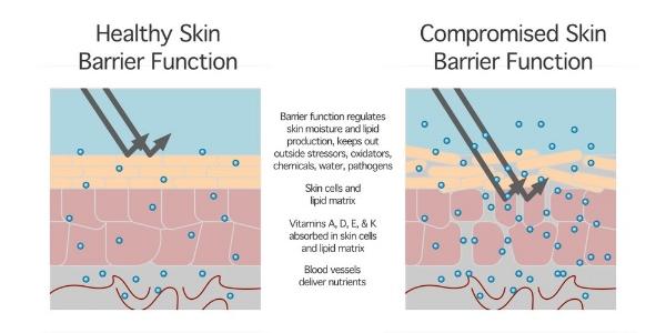 skin+barrier+function.jpg