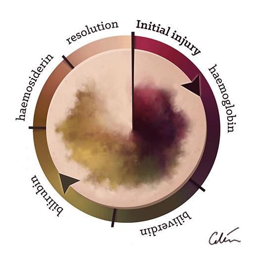 bruise timeline by Ciléin Kearns