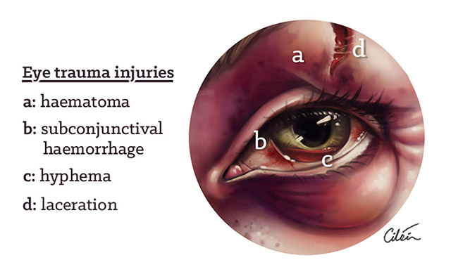 eye trauma injuries by Ciléin Kearns