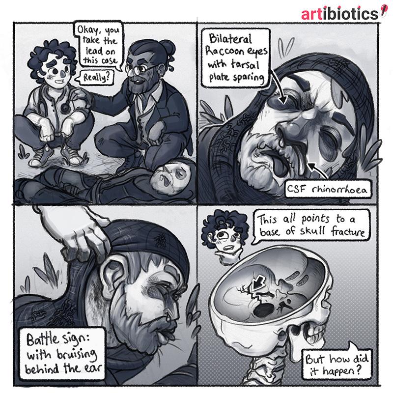 Base of skull fracture caretoon by Dr Ciléin Kearns