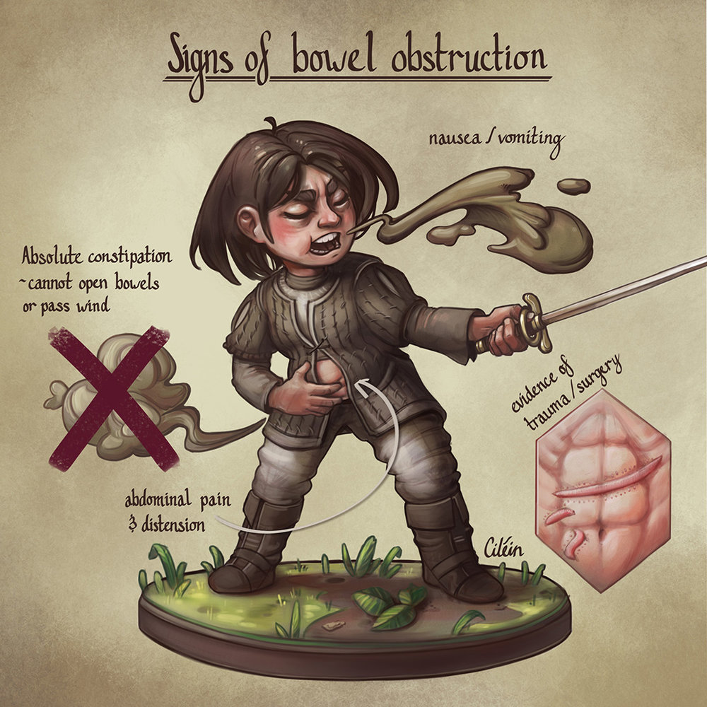 Bowel obstruction signs with Arya Stark, by Dr Ciléin Kearns (artibiotics)