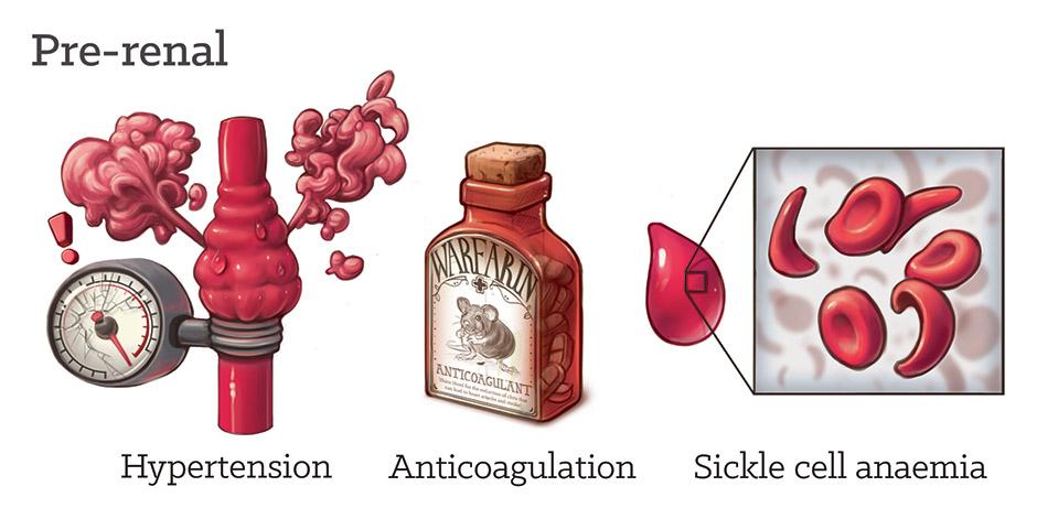 Pre-renal haematuria by Dr Ciléin Kearns (artibiotics)