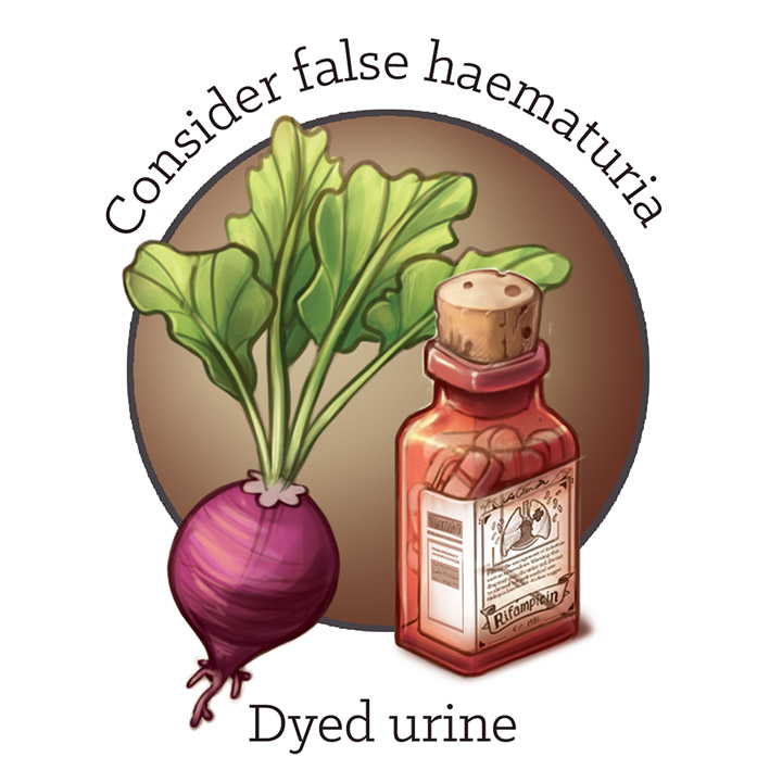 False haematuria causes by Dr Ciléin Kearns