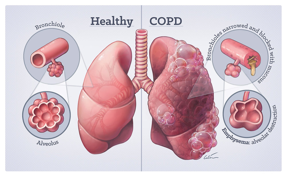 Lungs in health and COPD, medical illustration by Dr Ciléin Kearns (artibiotics)