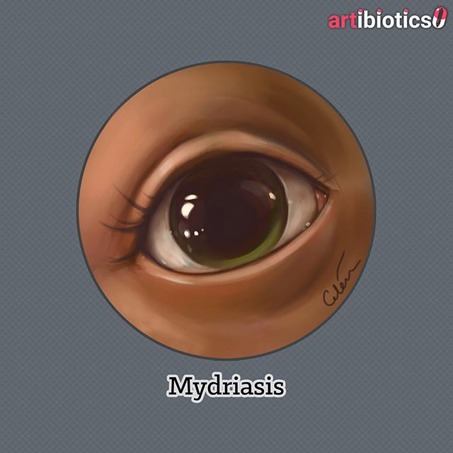 Mydriasis v03 by Dr Cilein Kearns (artibiotics).jpg