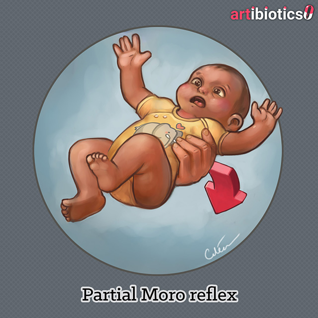 Partial moro reflex v2 by Dr Cilein Kearns (artibiotics).jpg