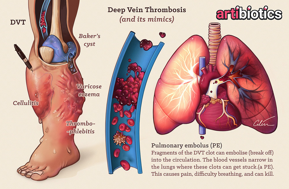 Figure 2:    DVT and its mimics (Baker's cyst, cellulitis, varicose eczema, thrombophlebitis), and Pulmonary Embolism (PE). Medical Illustration by Dr Ciléin Kearns (Artibiotics).    PDF posters here!