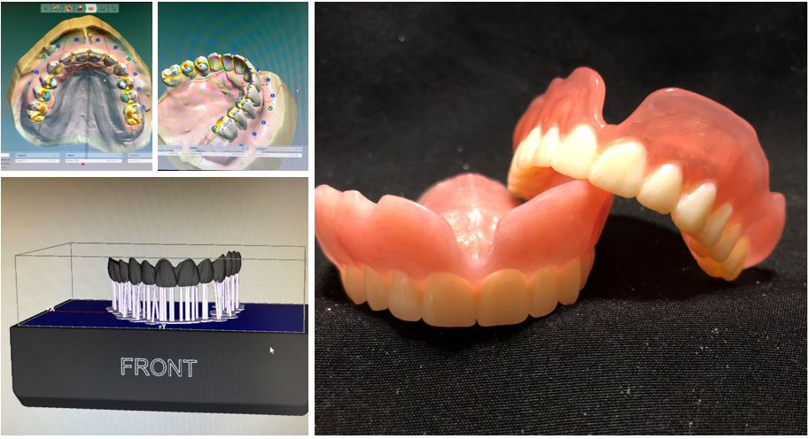 3Shape Scanner and Design Software from Zahn — Incisal Technologies