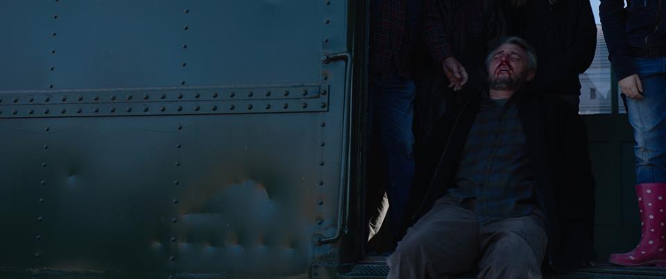 Babi bleeds on train.jpg