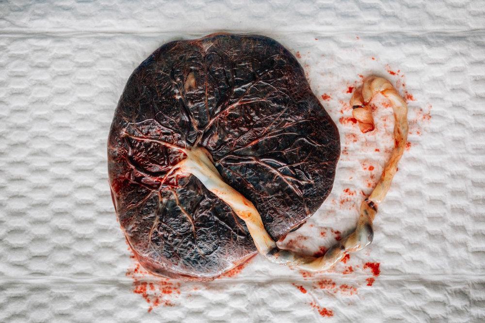 placenta resting on hopsital pinky (1 of 1).jpg