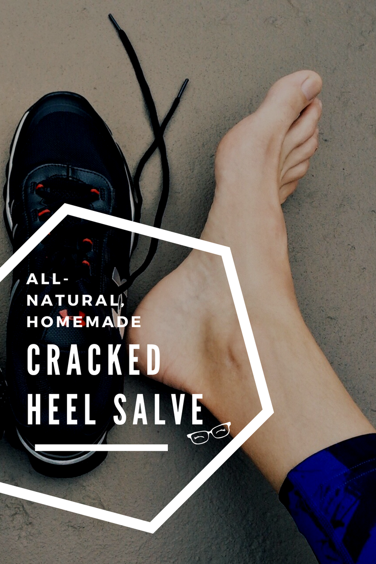 Pin Cracked Heel Salve.png