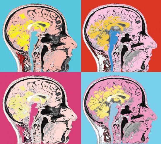 Brain-art-5-550x491.jpg