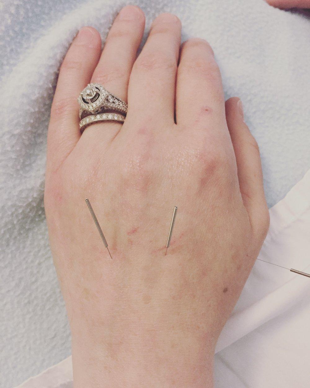 misfit wellness on acupuncture