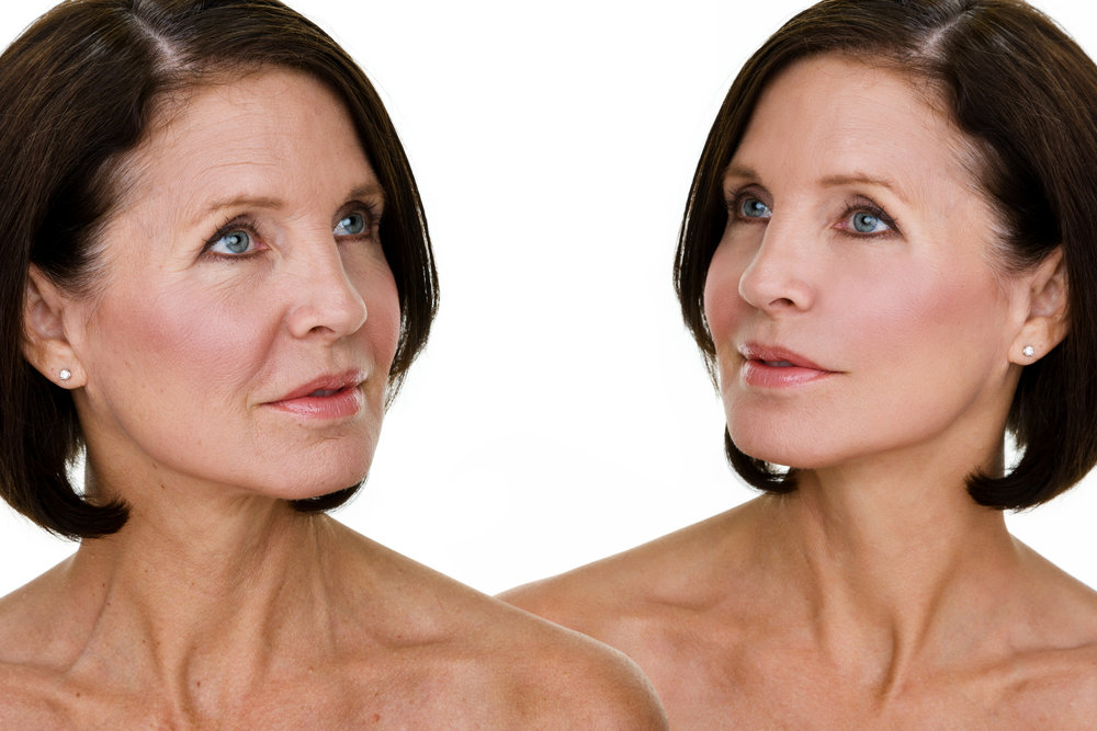Skin Tightening - As we age our bodies produce less structural proteins such as collagen and elastin. We use a Yag laser technology to heat and penetrate deeply into the skin's surface, causing a natural production of these proteins. This creates contracting, tightening, and more elasticity. You will look and feel years younger without any surgical or invasive procedure.