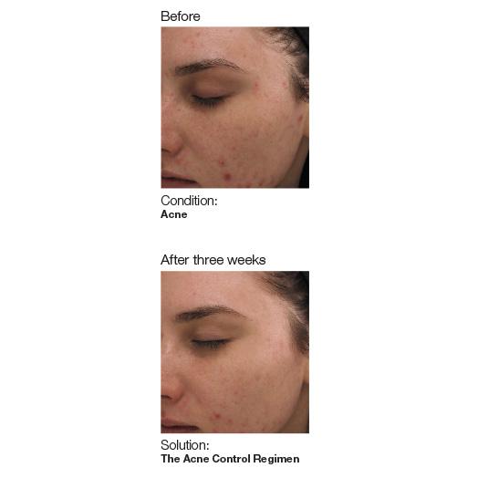 Acne-image3-web (1).jpg